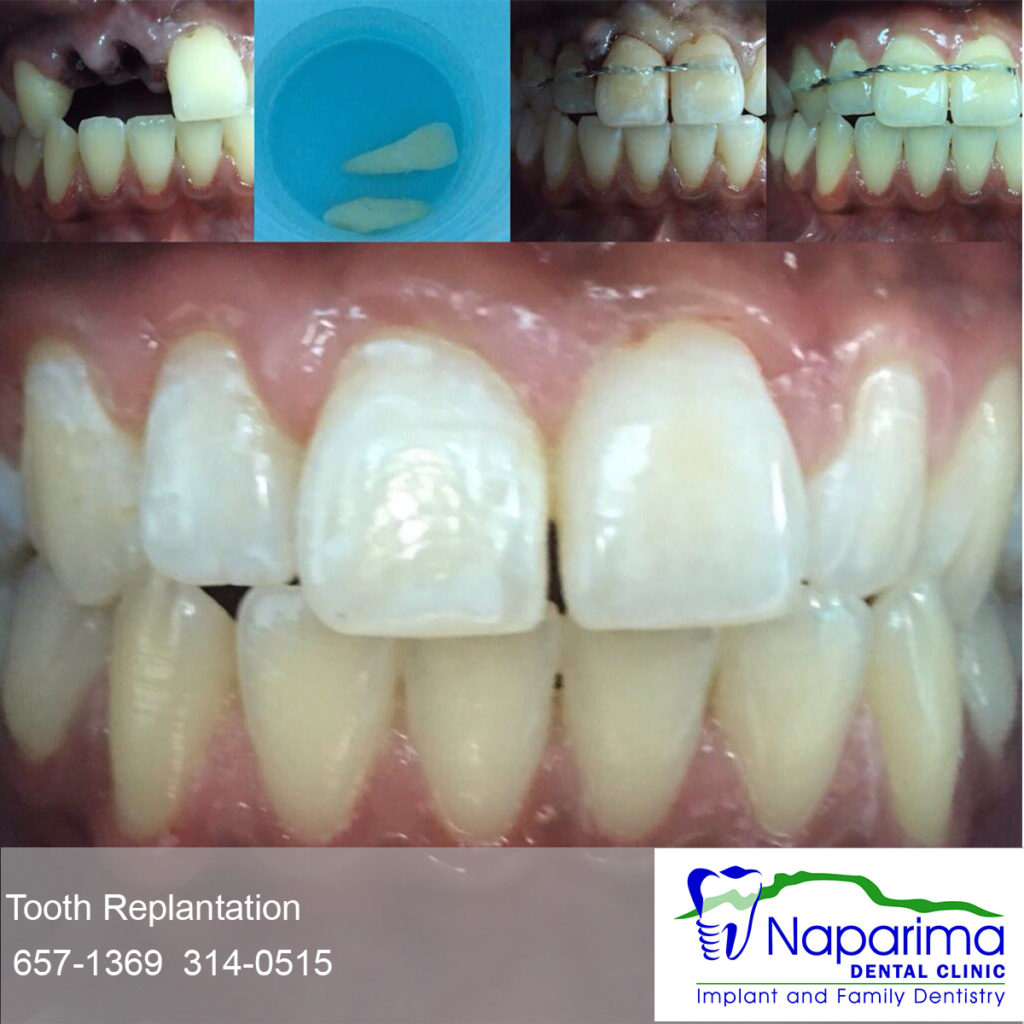replace tooth teeth knocked out replant