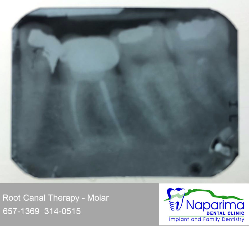 xray root canal impacted molar