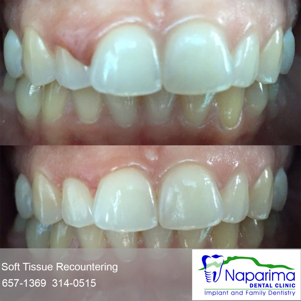 Tissue gum recounter reshape cosmetic teeth