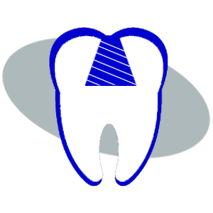Filled cavity